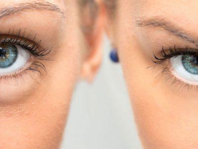 Nano Infusion Eye Treatment and Lip Plumping 800